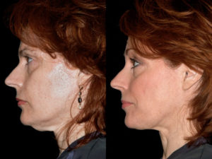 thermage Orlando Florida 1_before_and_after