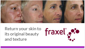 Orlando Fraxel treatments